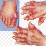 Mengenal Penyakit Reumatik Dan Asam Urat Dengan Benar